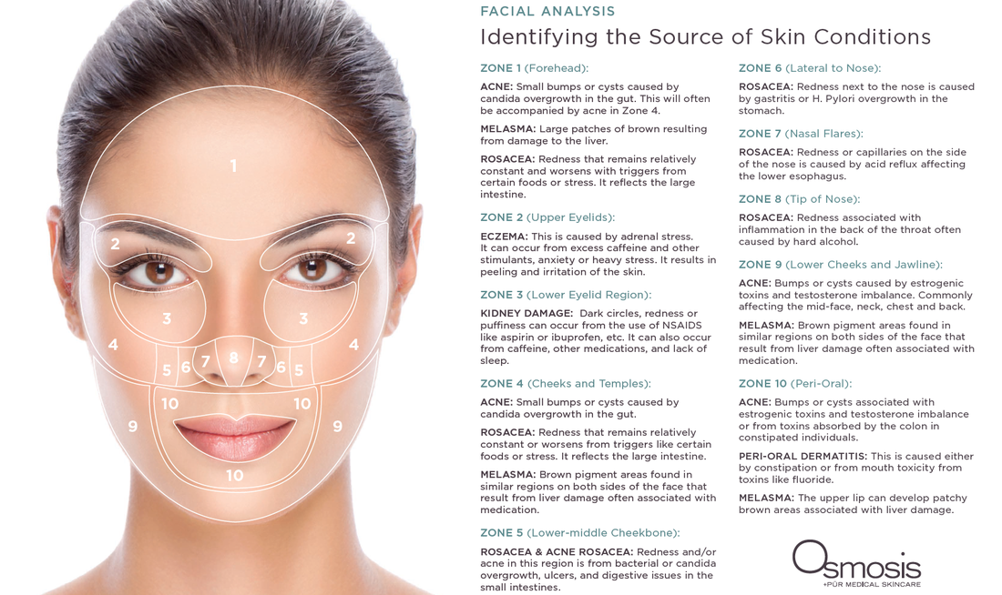 Skin Face Mapping Well Balanced Holistic Health And Beauty